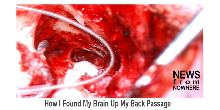 How I Found My Brain Up My BackPassage